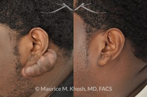 Photo of a patient before and after a procedure. Ear keloid (otoplasty) - Treatment for a very large keloid on the ear. One year post op result.