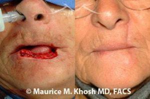 Lip reconstruction New York, NY