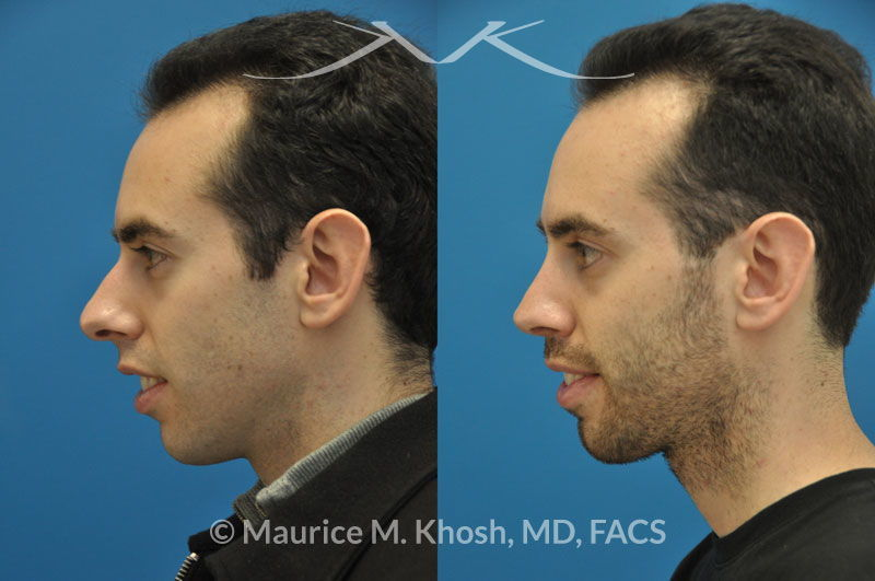 Male rhinoplasty New York, NY