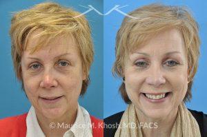 Nasal Fracture Treatment New York, NY