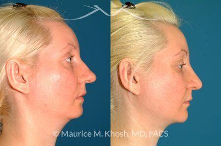 Neck liposuction New York, NY