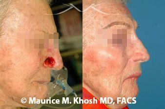 Nose reconstruction New York, NY