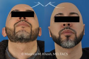Photo of a patient before and after a procedure. Ear pinning (otoplasty) - to address protubernt ears or prominent ears.