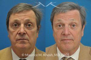 Nasal valve repair New York, NY