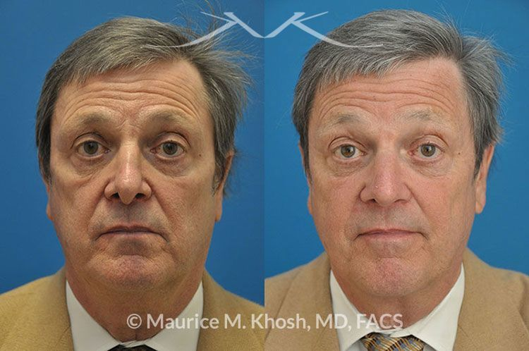Nasal valve repair New York, NY