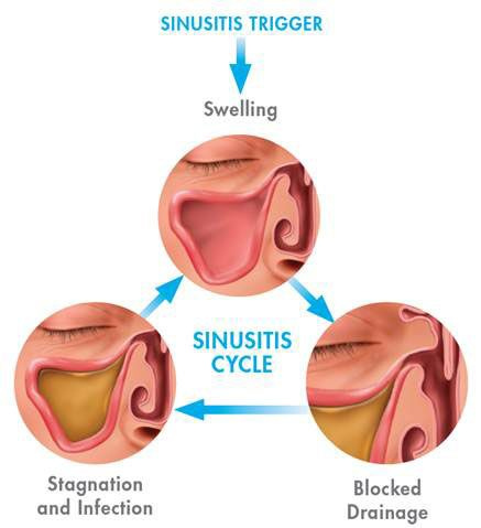 Chart showing sinusitis cycle. Swelling Bloked Drainage and stagnation and infection