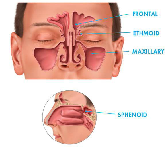 Image showing placement of the frontal, ethomid, maxillary and sphenoid.