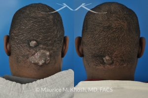 Photo of a patient before and after a procedure. Keloid of scalp - Due to keloid acne.