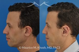 Photo of a patient before and after a procedure. Ear pinning (otoplasty) - for over projected large ears.