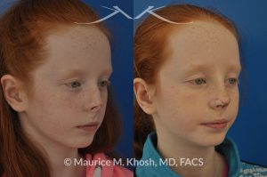 Photo of a patient before and after a procedure. Rhinoplasty - for nasal hemangioma.