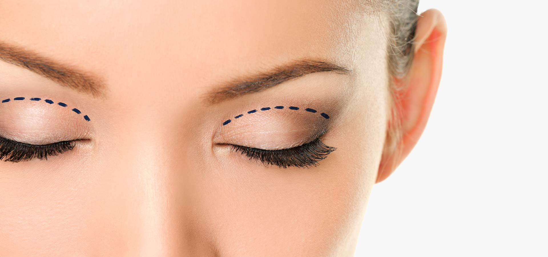 Blepharoplasty, Eyelid Lift Photo Gallery