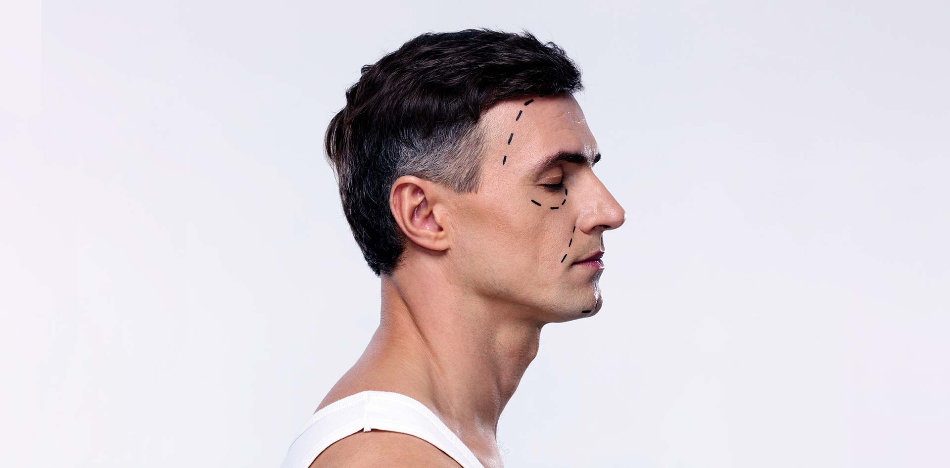 Male Cheek, Chin, & Jaw Augmentation