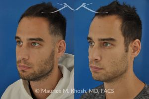Photo of a patient before and after a procedure. Left sided nasal valve repair with spreader