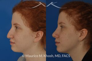 Photo of a patient before and after a procedure. Nose job - to lift droopy tip and remove nasal hump.
