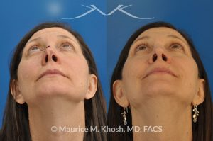 Photo of a patient before and after a procedure. Nose reconstruction - Rhinoplasty for Mohs skin defect of nose after skin cancer removal.