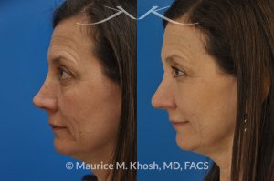 Photo of a patient before and after a procedure. Nose reconstruction - Rhinoplasty for Mos skin defect of nose after skin cancer removal.
