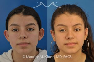 Before and After Pic of Young Lady After Ear Pinning Surgery New York NY