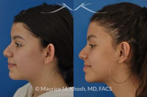 Photo of a patient before and after a procedure. Otoplasty - ear set back for protruding ears.