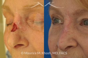Photo of a patient before and after a procedure. Repair of Moh's skin cancer defect of nose - Reconstruction of nose after basal cell cancer excision.