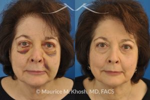 Photo of a patient before and after a procedure. Resetting a broken nose - Closed reduction of nose fracture.
