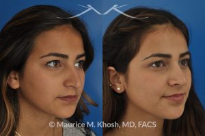 Photo of a patient before and after a procedure. Rhinoplasty - nose job to elevate a droopy tip and lower the bridge of the nose.