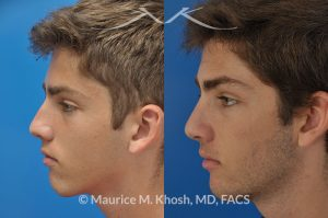 Photo of a patient before and after a procedure. Rhinoplasty - nose job to straighten a crooked nose.