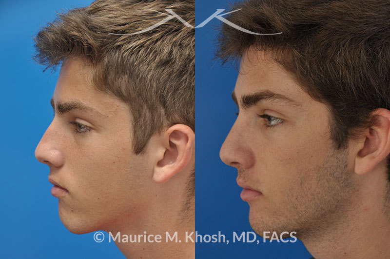 Rhinoplaty-nose-job-to-straighten-a-crooked-nose4 | Maurice
