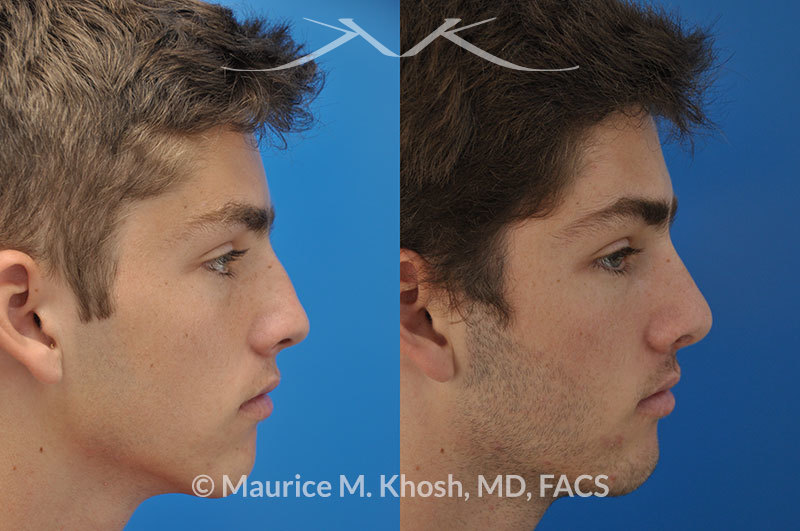 Rhinoplaty-nose-job-to-straighten-a-crooked-nose6 | Maurice