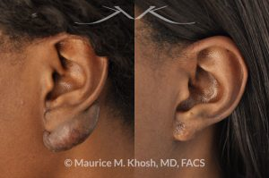 New York NY Plastic Surgeon for Keloid Scars