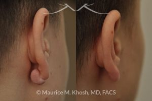 Photo of a patient before and after a procedure. Keloid - scar removal from the back side of the earlobe.