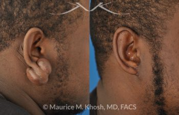 Large keloid scar removal from the earlobe - before and after.