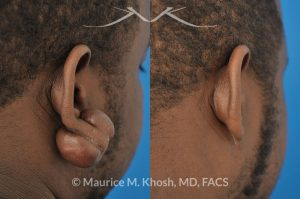 Photo of a patient before and after a procedure. Large keloid - scar removal from the earlobe.