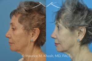 Photo of a patient before and after a procedure. Revision rhinoplasty with rib cartilage graft - This lovely patient had undergone rhinoplasty in her 30′s. She disliked the appearance of her nose and had difficulty breathing from the right side of her nose. She underwent revision rhinoplasty with rib cartilage graft to improve her nasal tip definition and improve her breathing function. The profile picture  with three images shows her nasal appearance before her original surgery, followed by her pre and post operative results after revision rhinoplasty.
