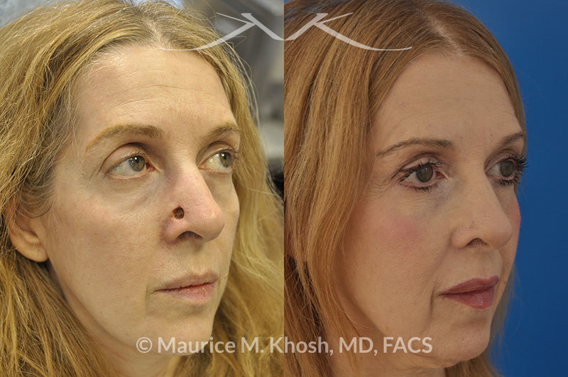 Maurice-Khosh---Skin-cancer-defect-of-the-nose,-after-Moh's