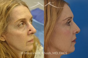 Photo of a patient before and after a procedure. Skin cancer defect of the nose, after Moh's surgery, reapired with bilobed flap - This lovely patient had undergone Moh's surgery to remove a skin cancer from the lower part of her nose. The nose defect was repaired with a bi-lobed skin flap, from the upper nose. The right side photo demonstrates the results three years after her reconstructive surgery.