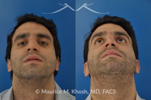 Photo of a patient before and after a procedure. Closed reduction of nose fracture, re-setting a proken nose as an office procedure