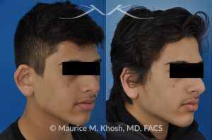 Photo of a patient before and after a procedure. Ear pinning (otoplasty)