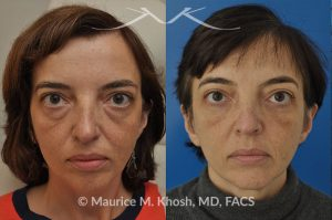 Photo of a patient before and after a procedure. Lower eyelid lift