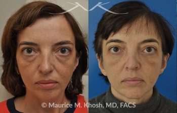 Lower eyelid lift before and after photo