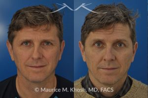 Nasal valve repair before and after photo