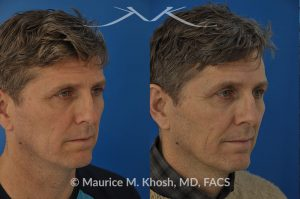 Photo of a patient before and after a procedure. Nasal valve repair