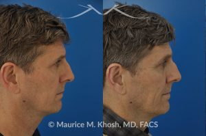 Nasal valve repair before and after photo 6