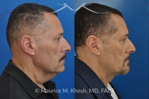 Photo of a patient before and after a procedure. Neck lift & Lipoma - Necklift performed directly through a midline neck incision. Simultaneous removal of benign fatty tumor of the neck (lipoma) through the same approach