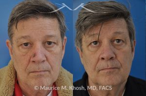 Photo of a patient before and after a procedure. Patient with basal cell skin cancer removed from the right lower nose - The nose defect was repaired with a skin graft obtained from the skin in front of the ear.