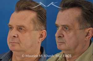 Photo of a patient before and after a procedure. Upper eyelid lift