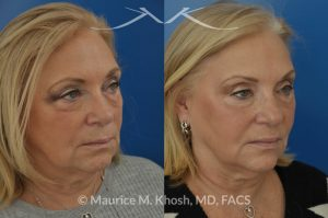 Photo of a patient before and after a procedure. Botox for the brow, and smile lines. Facial filler Voluma for the cheeks, temples, tear trough, and the side of the lower jaw. Although no eyelid surgery was performed, the lower eyelids look much younger.