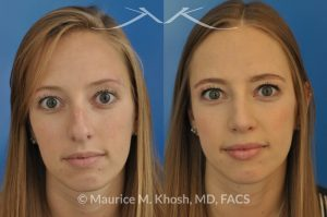 Photo of a patient before and after a procedure. Rhinoplasty to reduce a nose hump, elevate the nose tip, and refine the nose tip
