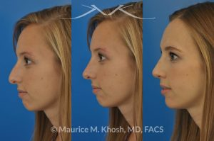 Photo of a patient before and after a procedure.  Rhinoplasty to refine the nose tip and reduce a small hump. The left picture shows the before, the center picture shows the computer simulation, and the left one shows the post op result.