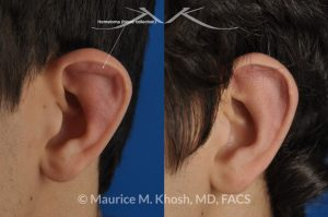Photo of a patient before and after a procedure. Drainage - of ear blood collection, auricular hematoma