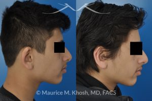 Photo of a patient before and after a procedure. Otoplasty - to fix over-projected right ear